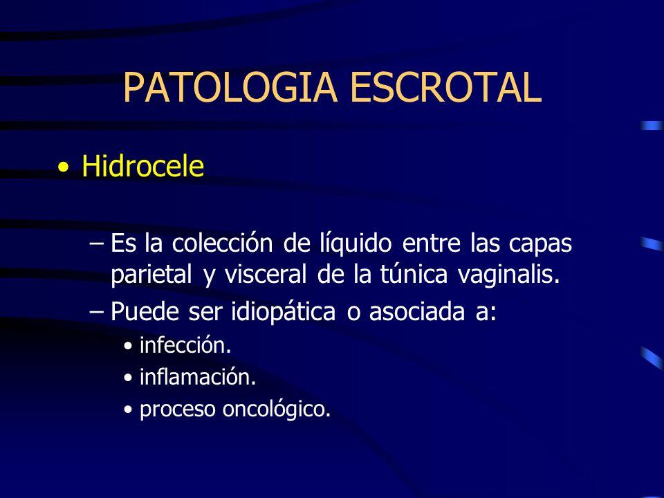 PATOLOGIA ESCROTAL Hidrocele