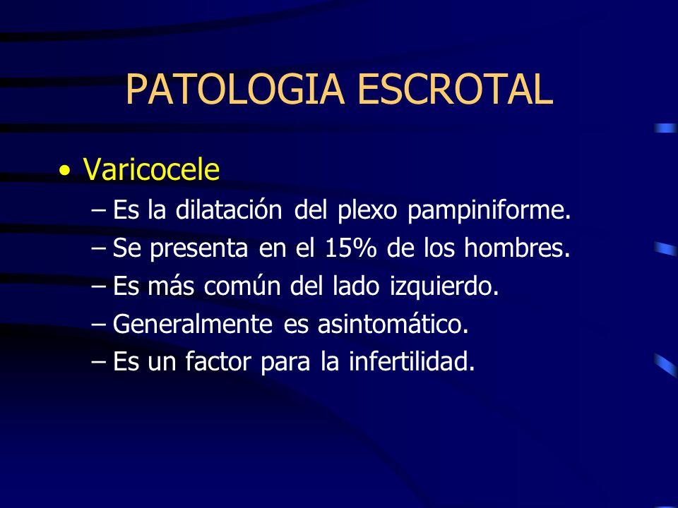 PATOLOGIA ESCROTAL Varicocele Es la dilatación del plexo pampiniforme.