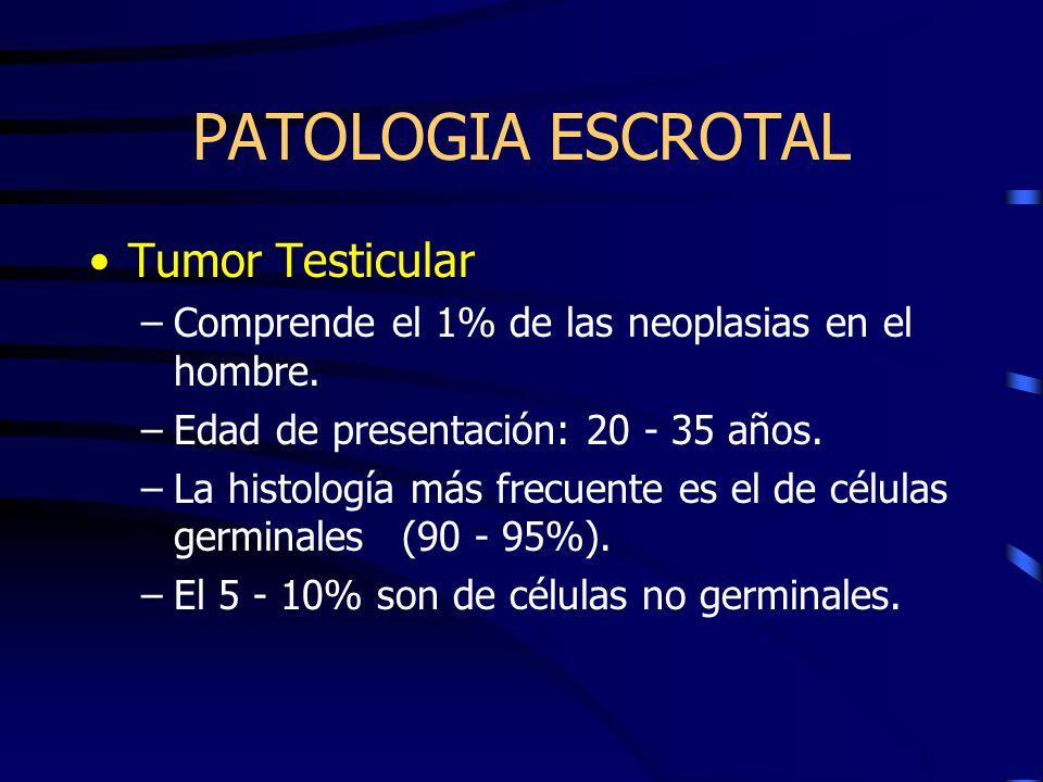PATOLOGIA ESCROTAL Tumor Testicular