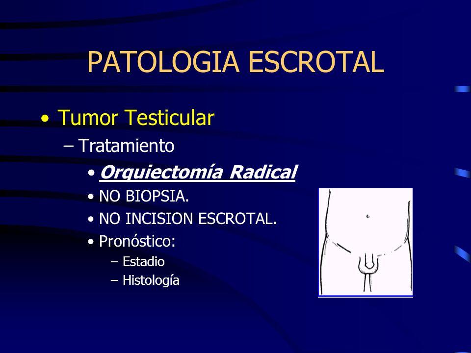 PATOLOGIA ESCROTAL Tumor Testicular Tratamiento Orquiectomía Radical