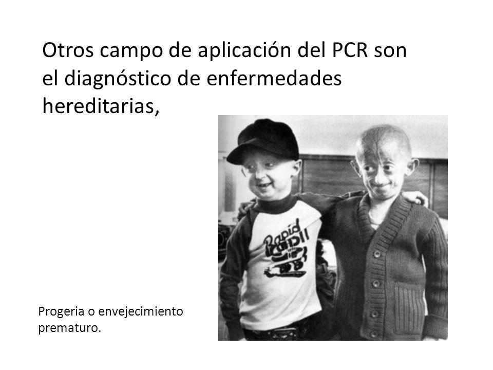Otros campo de aplicación del PCR son el diagnóstico de enfermedades hereditarias,