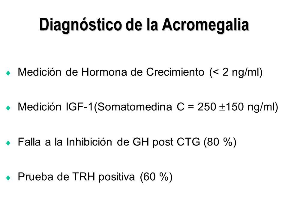Diagnóstico de la Acromegalia