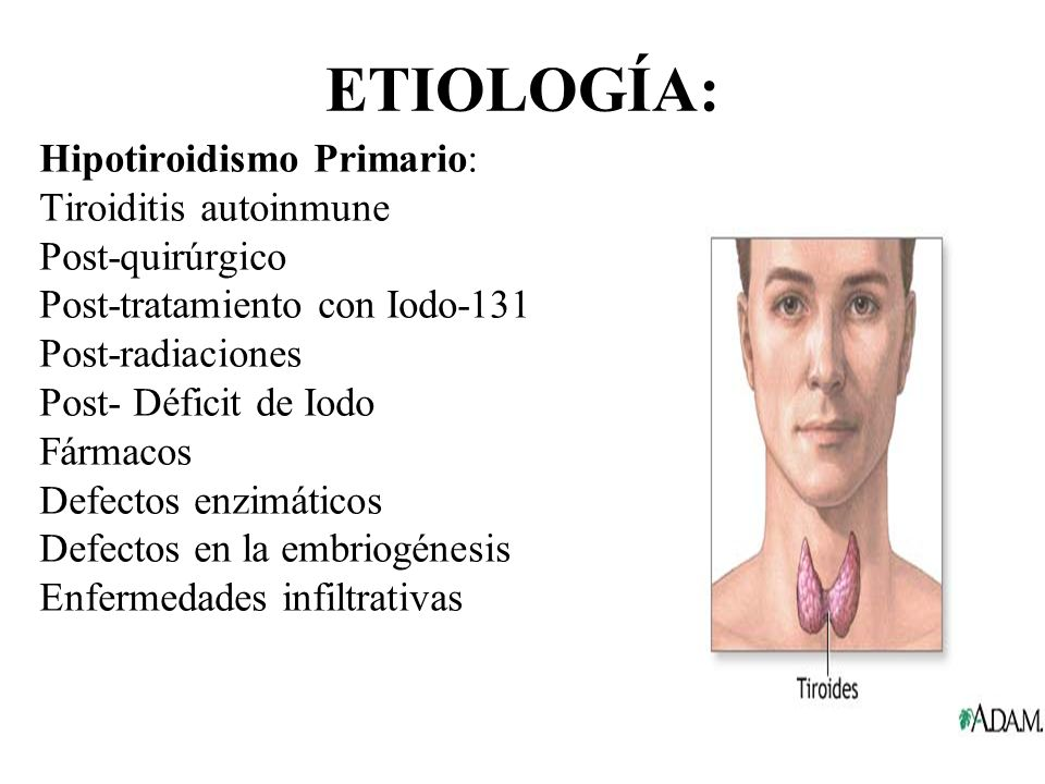ETIOLOGÍA: Hipotiroidismo Primario: Tiroiditis autoinmune