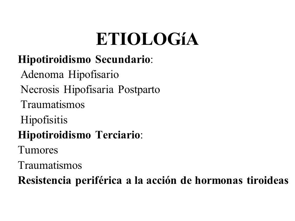 ETIOLOGíA Hipotiroidismo Secundario: Adenoma Hipofisario