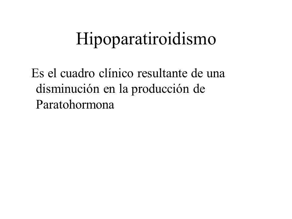 HipoparatiroidismoEs el cuadro clínico resultante de una disminución en la producción de Paratohormona.