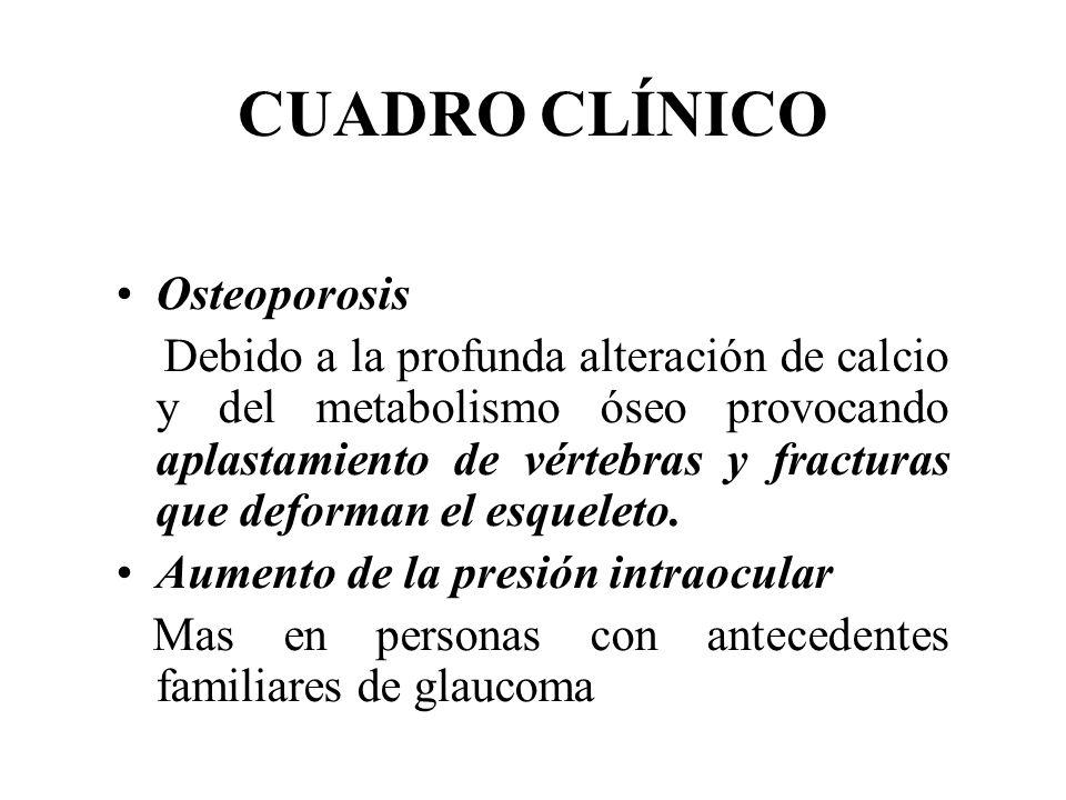 CUADRO CLÍNICO Osteoporosis