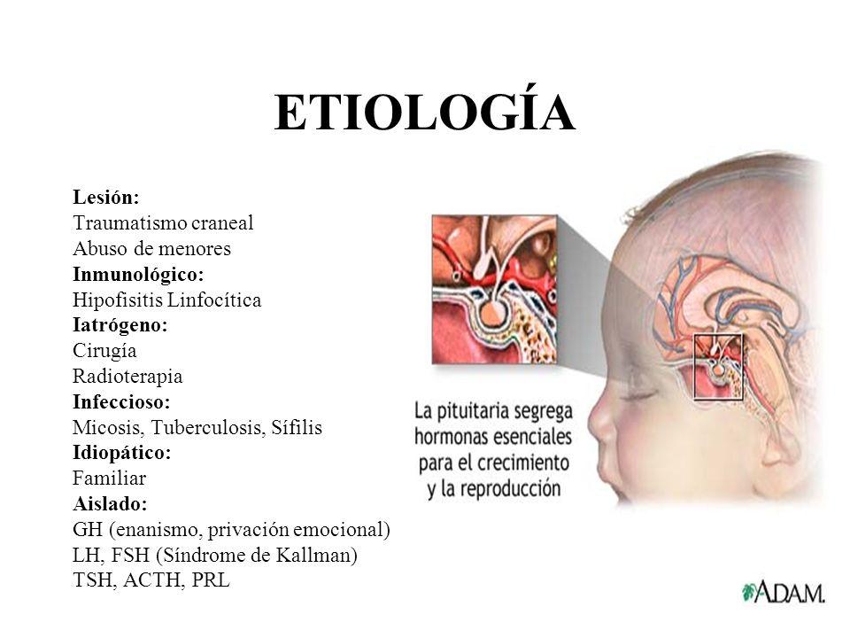 ETIOLOGÍA Lesión: Traumatismo craneal Abuso de menores Inmunológico:
