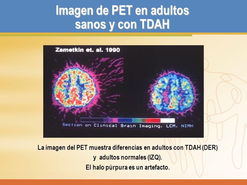 Imagen de PET en adultos sanos y con TDAH