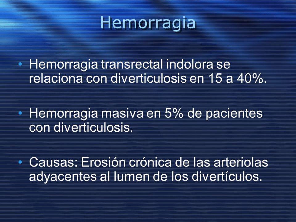 Hemorragia Hemorragia transrectal indolora se relaciona con diverticulosis en 15 a 40%. Hemorragia masiva en 5% de pacientes con diverticulosis.
