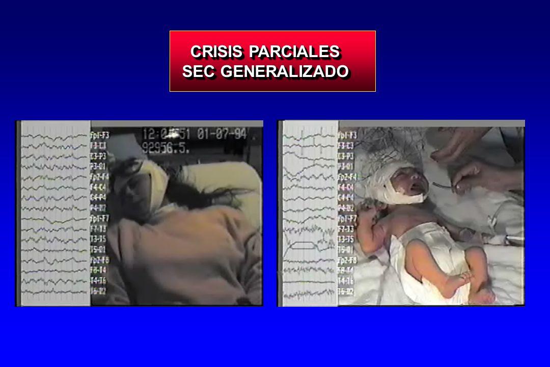 CRISIS PARCIALES SEC GENERALIZADO