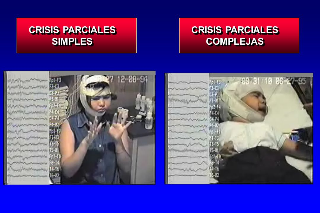 CRISIS PARCIALES SIMPLES CRISIS PARCIALES COMPLEJAS
