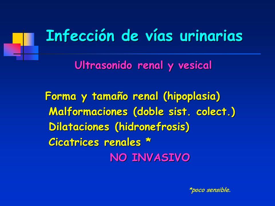 Infección de vías urinarias