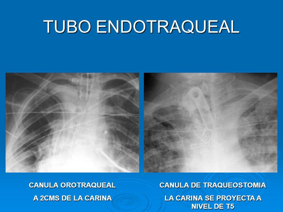 CANULA DE TRAQUEOSTOMIA LA CARINA SE PROYECTA A NIVEL DE T5