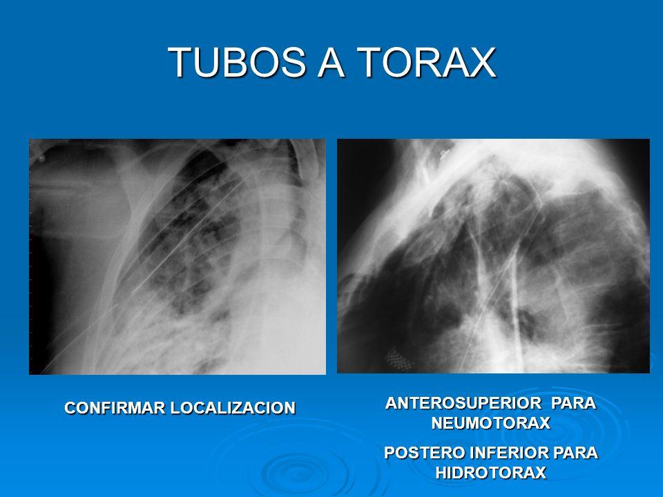 TUBOS A TORAX ANTEROSUPERIOR PARA NEUMOTORAX CONFIRMAR LOCALIZACION