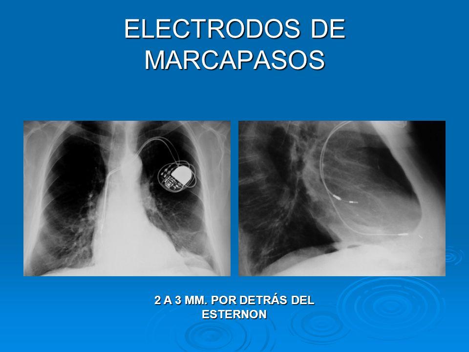 ELECTRODOS DE MARCAPASOS