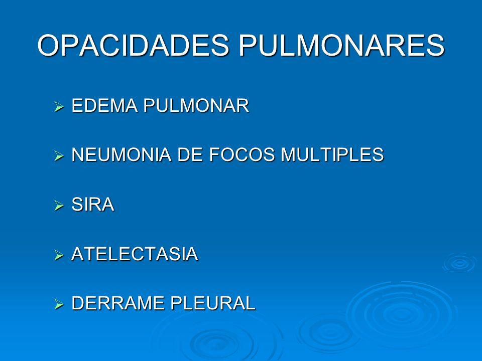 OPACIDADES PULMONARES