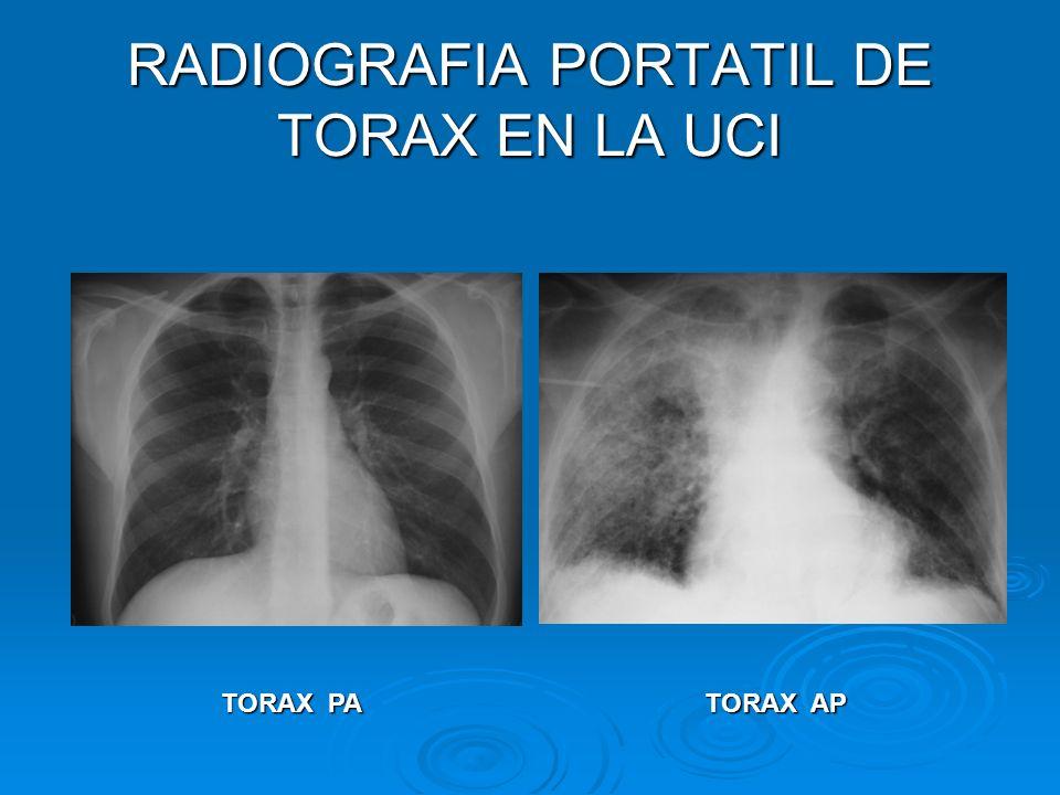 RADIOGRAFIA PORTATIL DE TORAX EN LA UCI