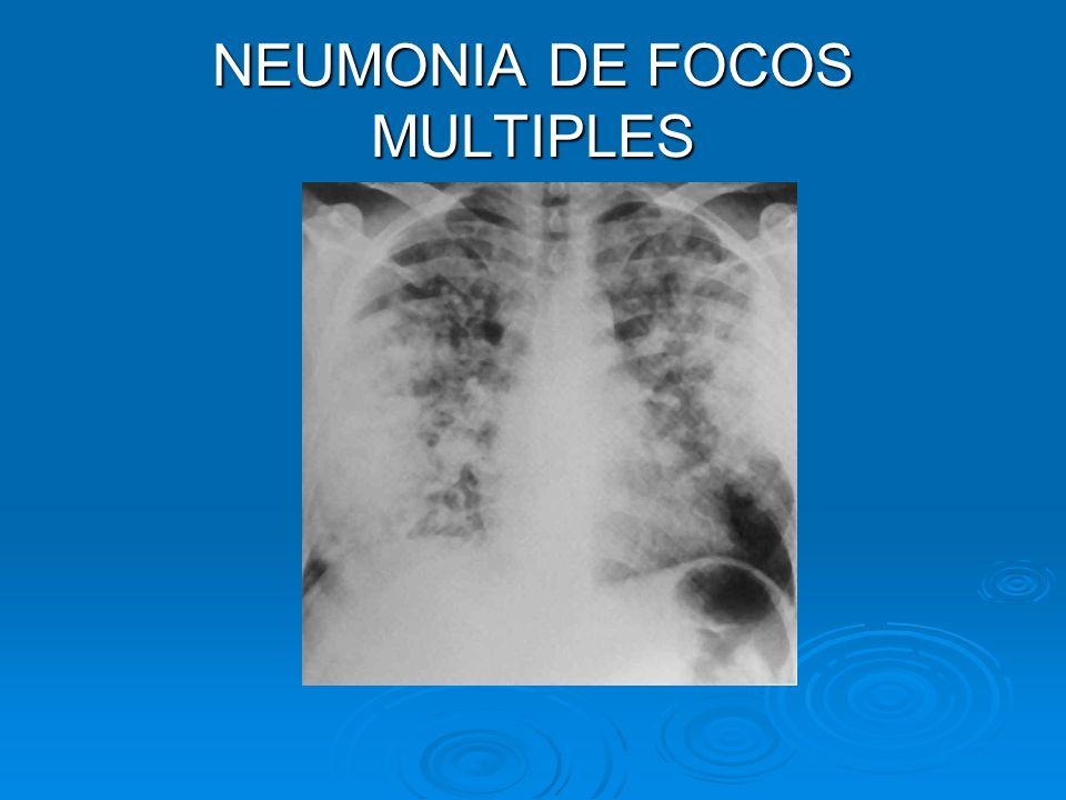 NEUMONIA DE FOCOS MULTIPLES