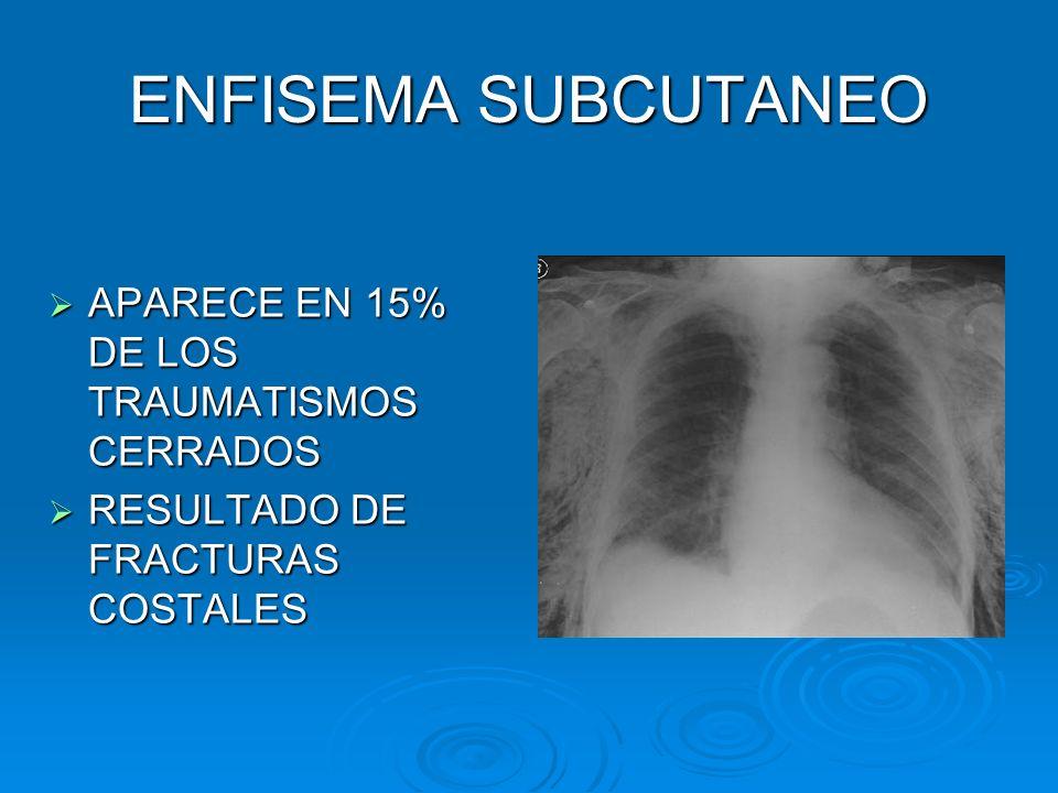 ENFISEMA SUBCUTANEO APARECE EN 15% DE LOS TRAUMATISMOS CERRADOS