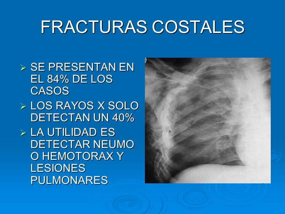 FRACTURAS COSTALES SE PRESENTAN EN EL 84% DE LOS CASOS