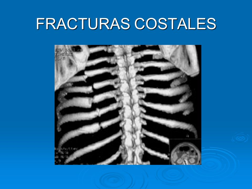 FRACTURAS COSTALES