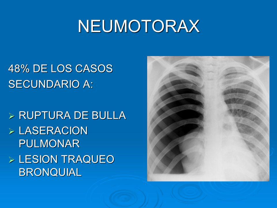 NEUMOTORAX 48% DE LOS CASOS SECUNDARIO A: RUPTURA DE BULLA