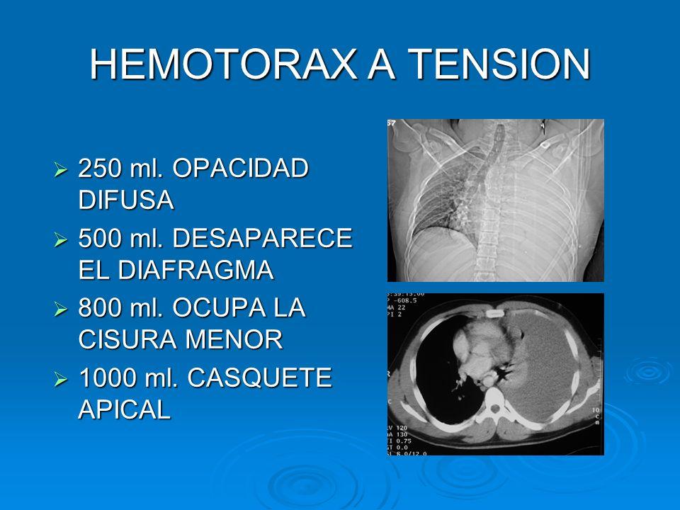HEMOTORAX A TENSION 250 ml. OPACIDAD DIFUSA