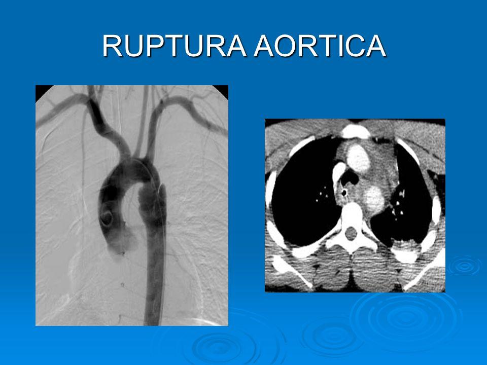 RUPTURA AORTICA