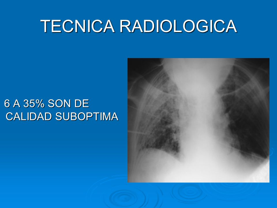 TECNICA RADIOLOGICA 6 A 35% SON DE CALIDAD SUBOPTIMA
