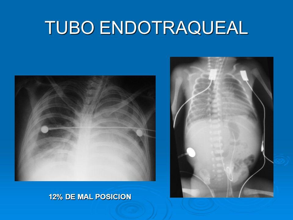 TUBO ENDOTRAQUEAL 12% DE MAL POSICION