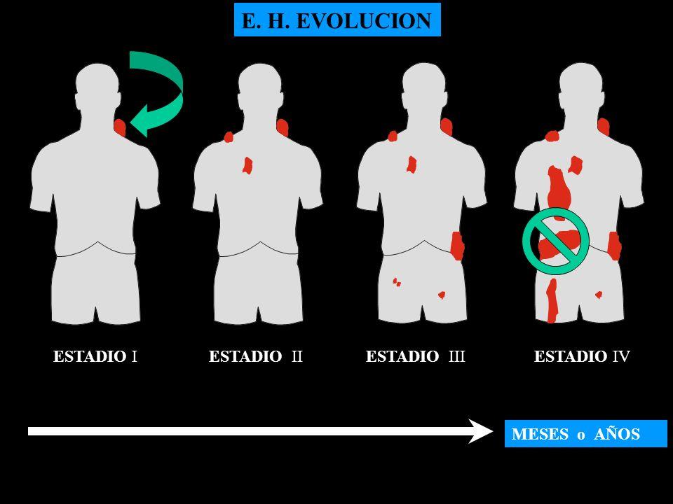 E. H. EVOLUCION ESTADIO I ESTADIO II ESTADIO III ESTADIO IV