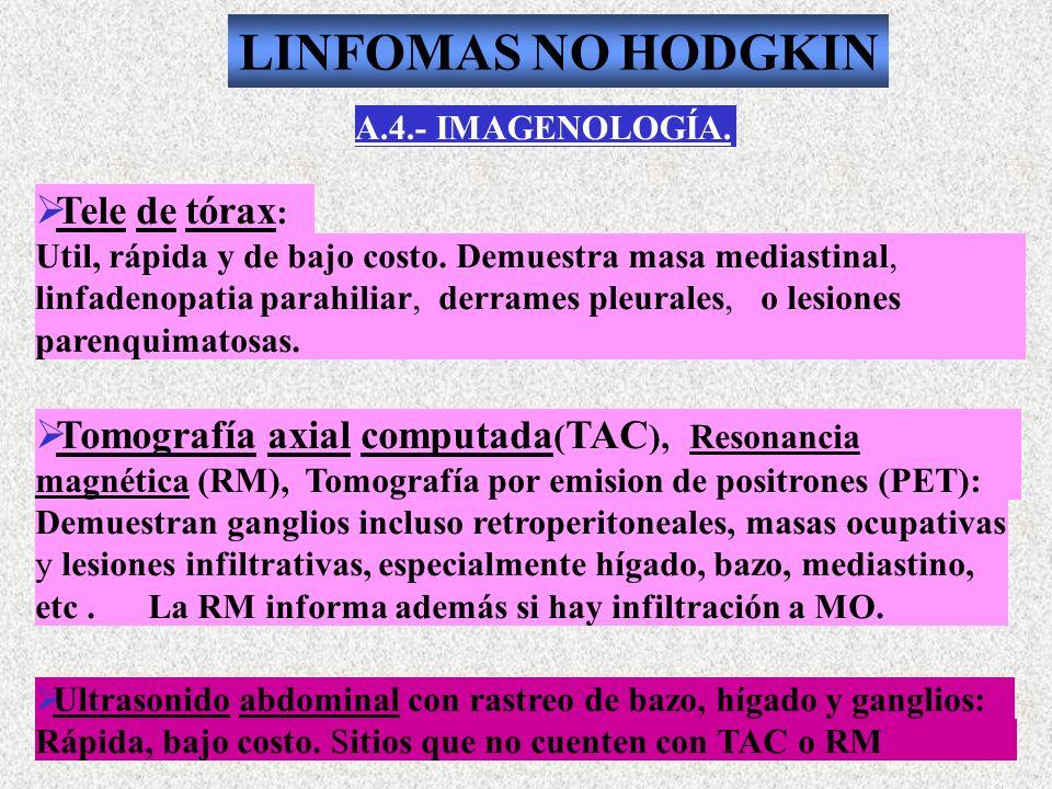 LINFOMAS NO HODGKIN Tele de tórax:
