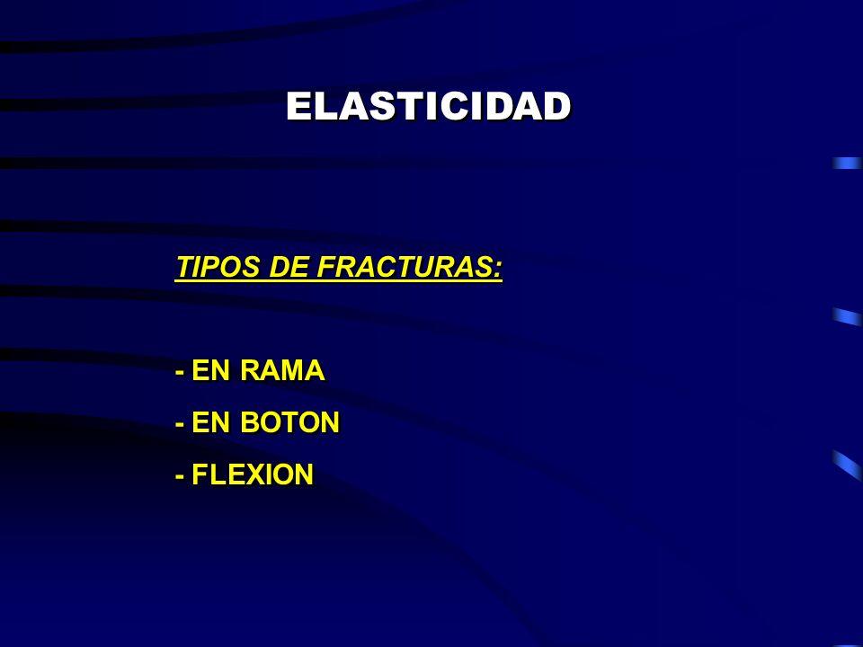 ELASTICIDAD TIPOS DE FRACTURAS: - EN RAMA - EN BOTON - FLEXION