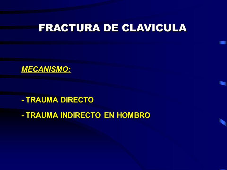 FRACTURA DE CLAVICULA MECANISMO: - TRAUMA DIRECTO