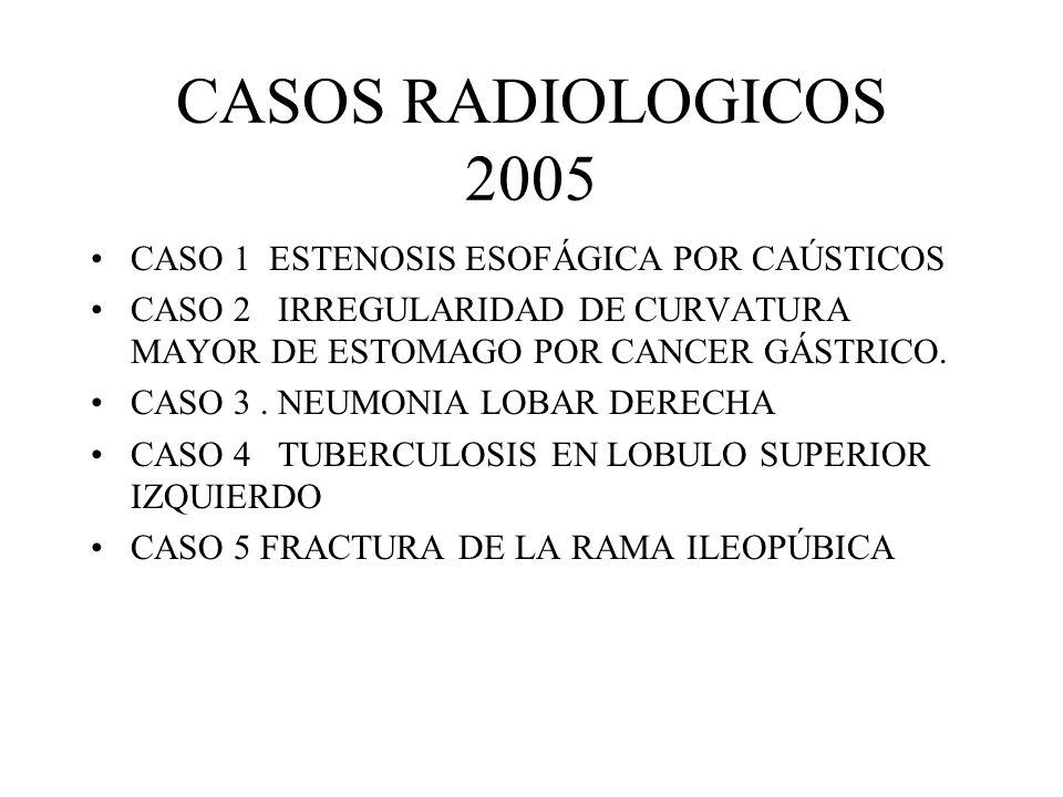 CASOS RADIOLOGICOS 2005 CASO 1 ESTENOSIS ESOFÁGICA POR CAÚSTICOS