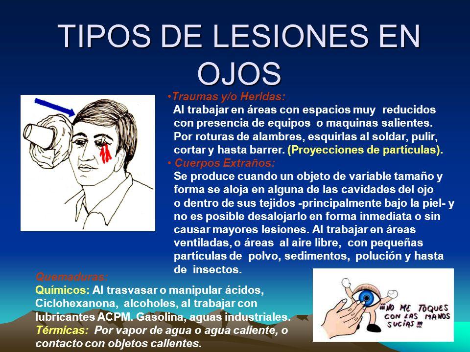 TIPOS DE LESIONES EN OJOS