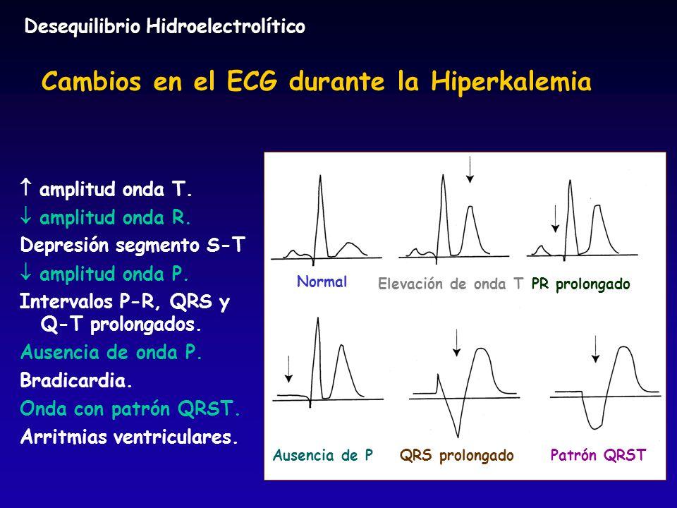 Cambios en el ECG durante la Hiperkalemia