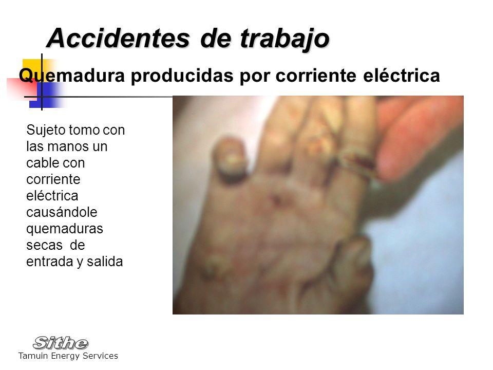 Accidentes de trabajo Quemadura producidas por corriente eléctrica