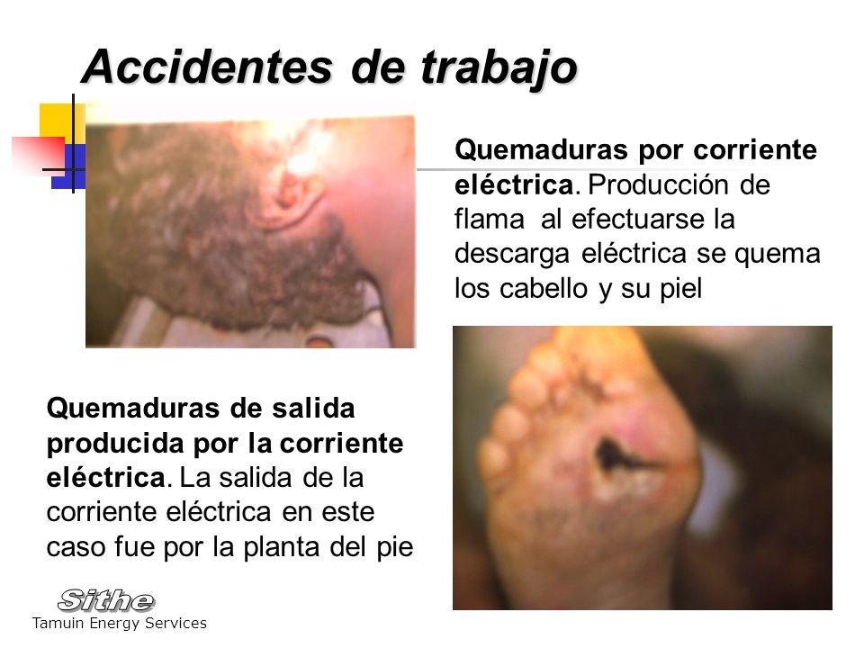 Accidentes de trabajo Quemaduras por corriente eléctrica. Producción de flama al efectuarse la descarga eléctrica se quema los cabello y su piel.