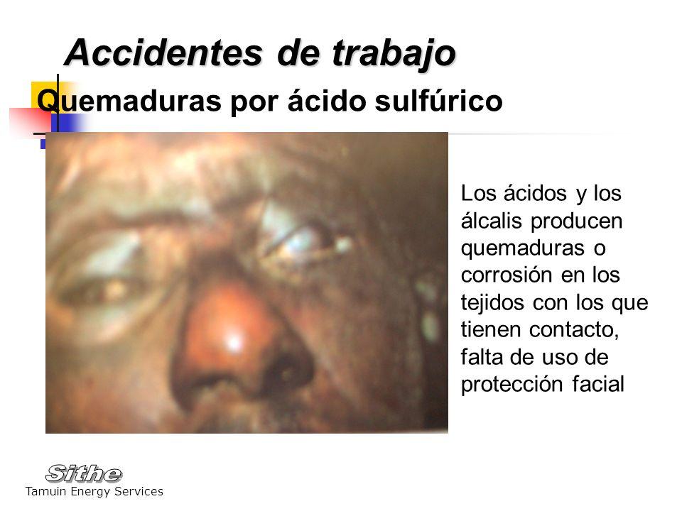 Accidentes de trabajo Quemaduras por ácido sulfúrico