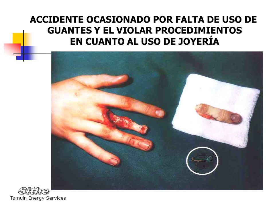 ACCIDENTE OCASIONADO POR FALTA DE USO DE
