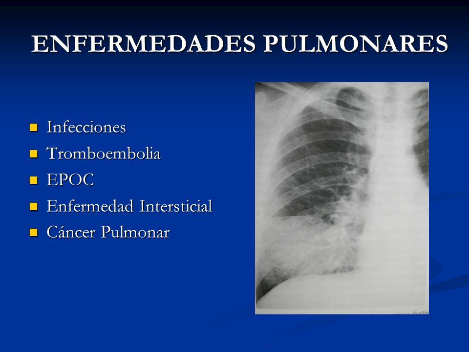 ENFERMEDADES PULMONARES