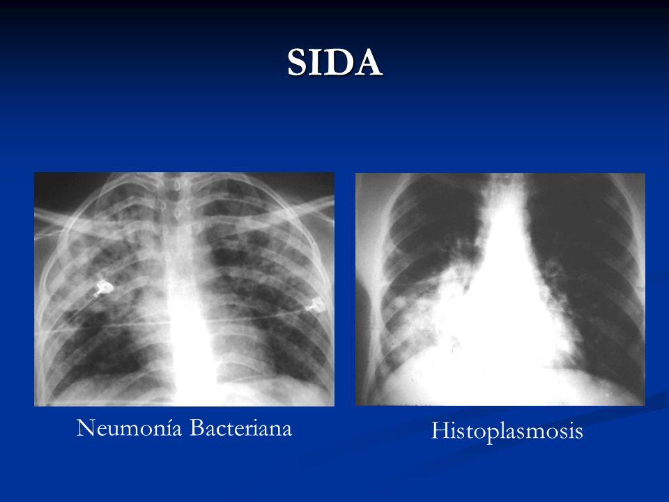SIDA Neumonía Bacteriana Histoplasmosis