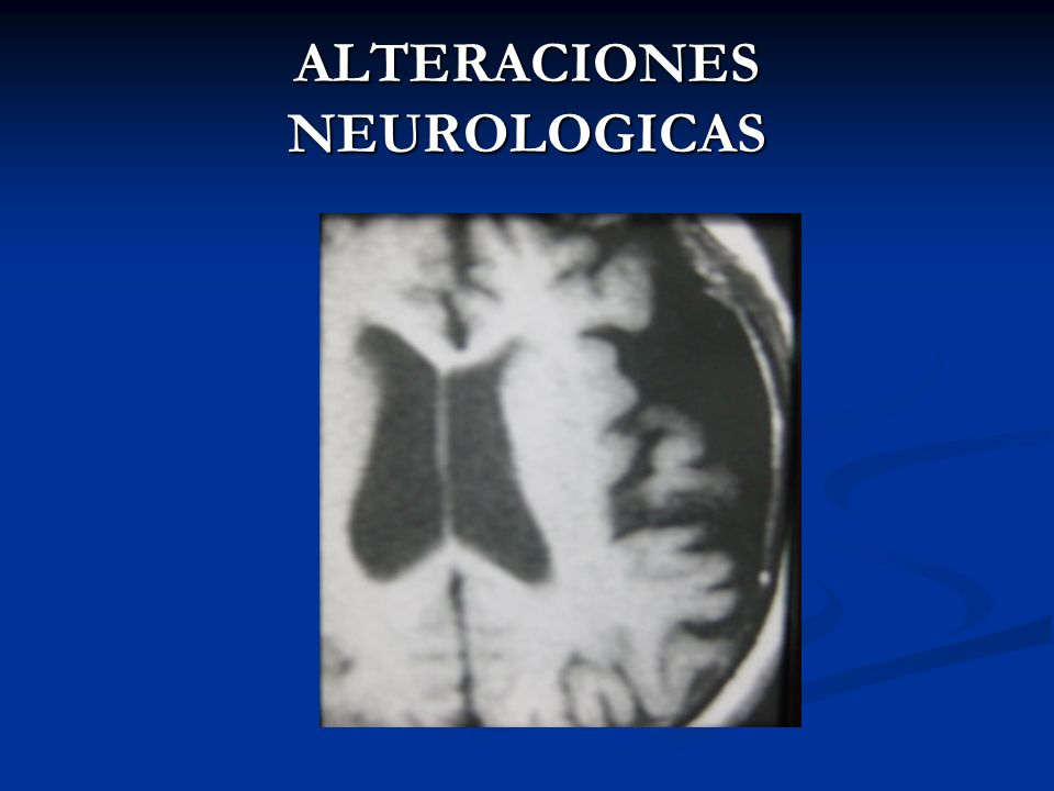 ALTERACIONES NEUROLOGICAS