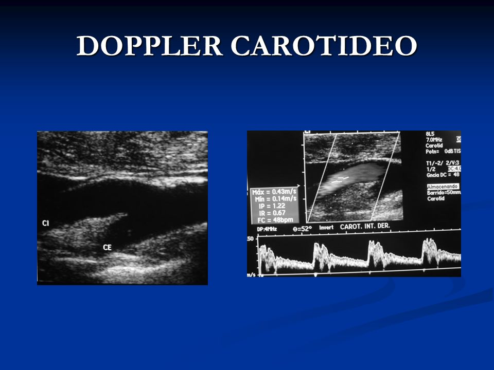 DOPPLER CAROTIDEO