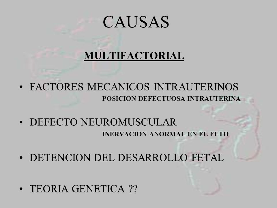 CAUSAS MULTIFACTORIAL FACTORES MECANICOS INTRAUTERINOS
