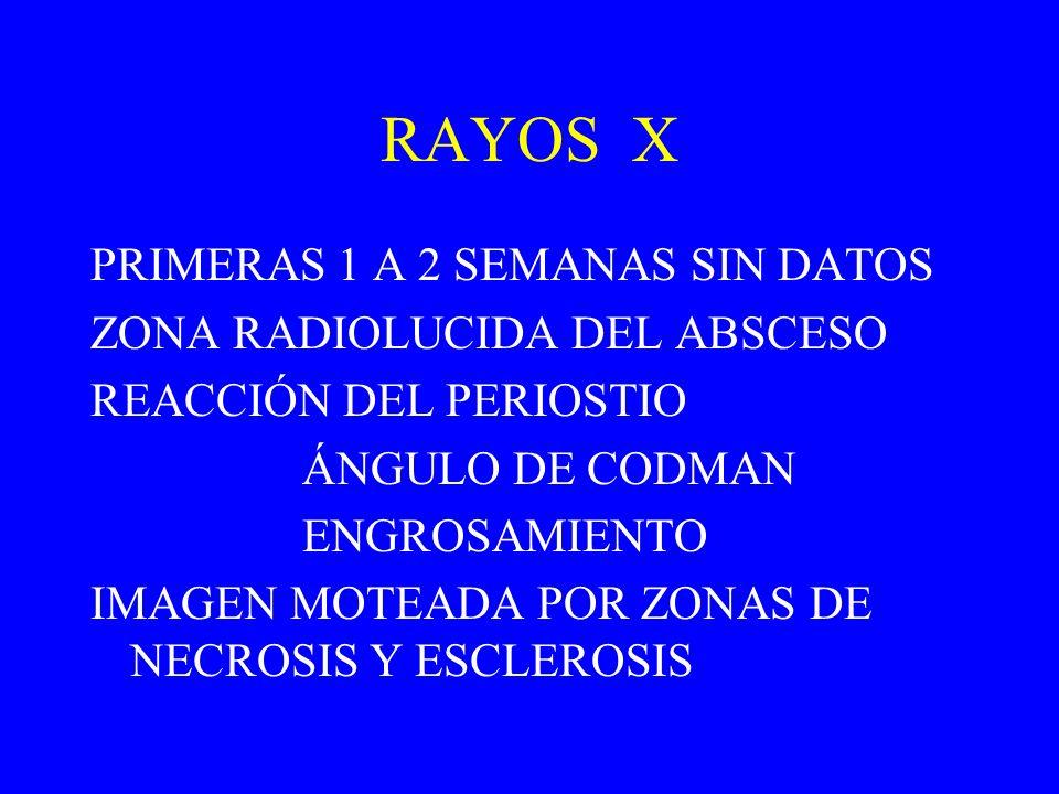 RAYOS X PRIMERAS 1 A 2 SEMANAS SIN DATOS ZONA RADIOLUCIDA DEL ABSCESO