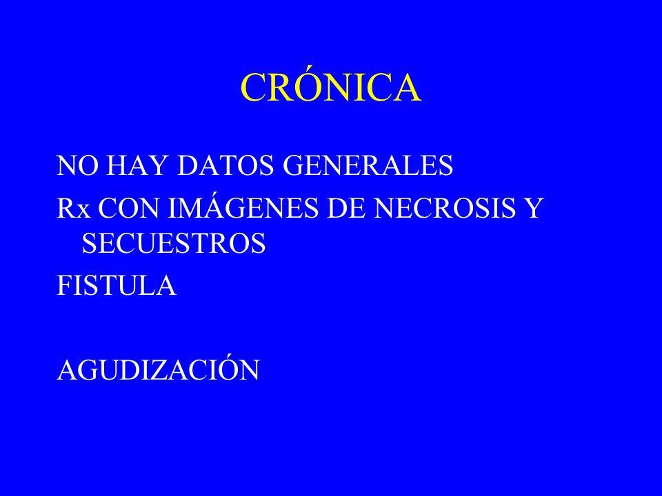 CRÓNICA NO HAY DATOS GENERALES