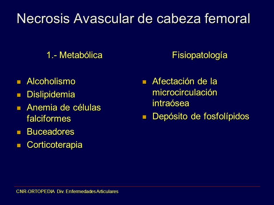 Necrosis Avascular de cabeza femoral