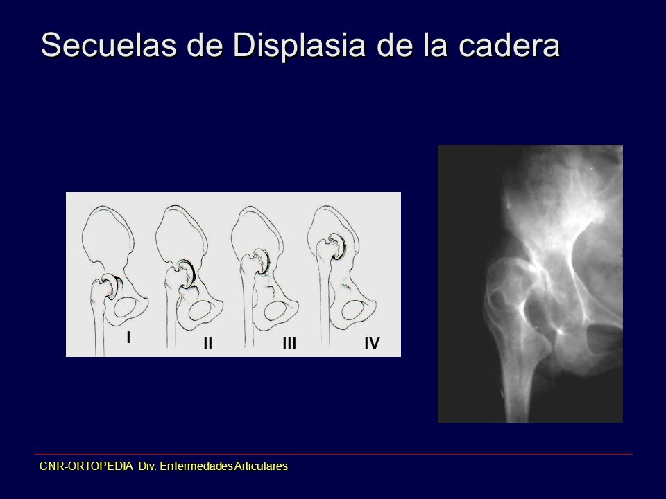 Secuelas de Displasia de la cadera